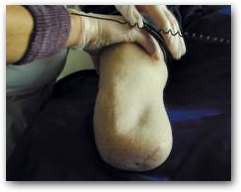 DEEP OSCILLATION applied on amputations  » Click to zoom ->