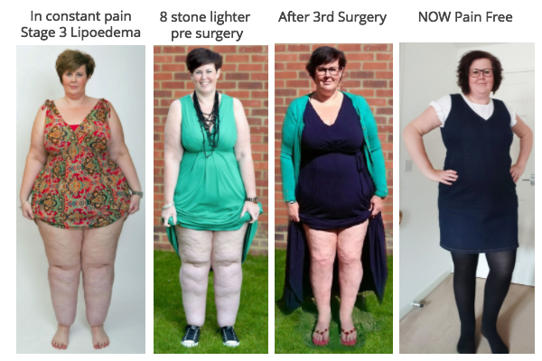 Claire Tickle, Lipoedema Sufferer Completes Final Surgery With