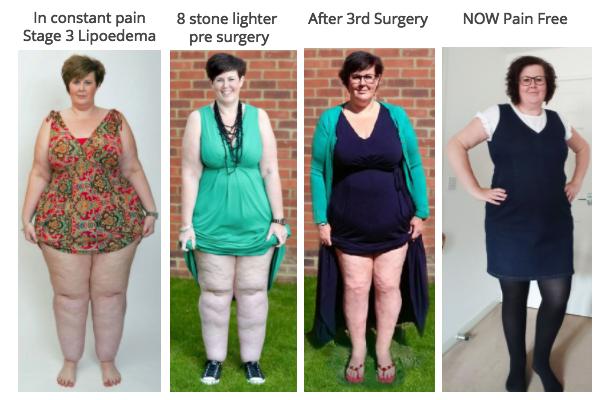 Claire Tickle, Lipoedema Sufferer Completes Final Surgery